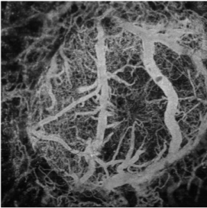 Photo of mouse brain vasculature, one of the challenges of the summer is to remove noisy data from the image through processing in MATLAB