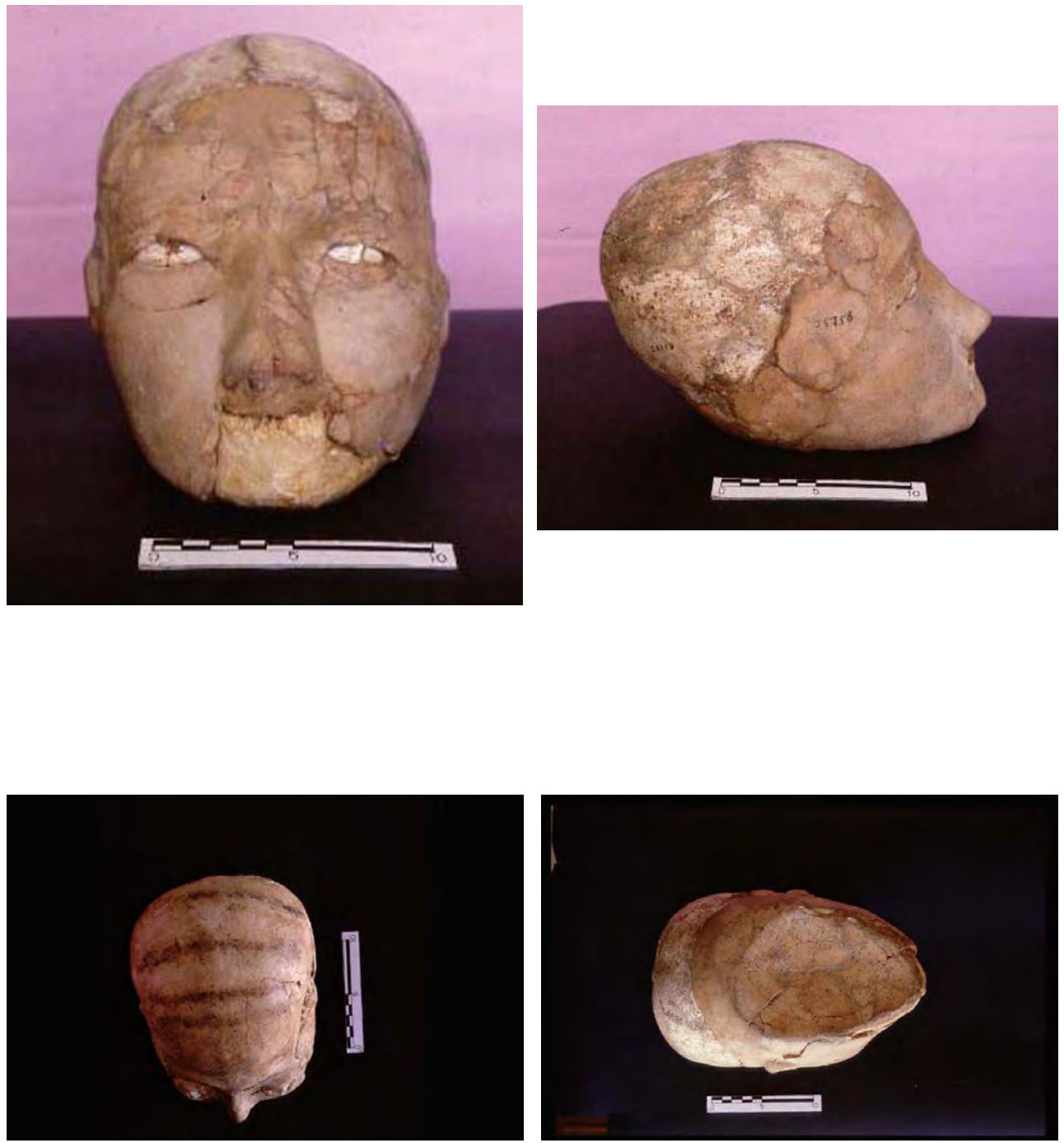 four photographs skull at different angles.