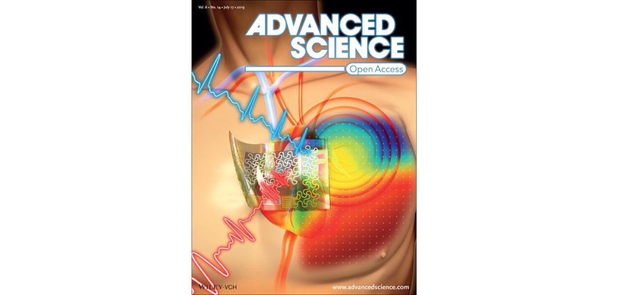 Our chest-laminated ultrathin and stretchable e-tattoo for ECG, SCG and CTI is selected as the front cover of Advanced Science